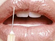Injectables & Fillers Carlsbad